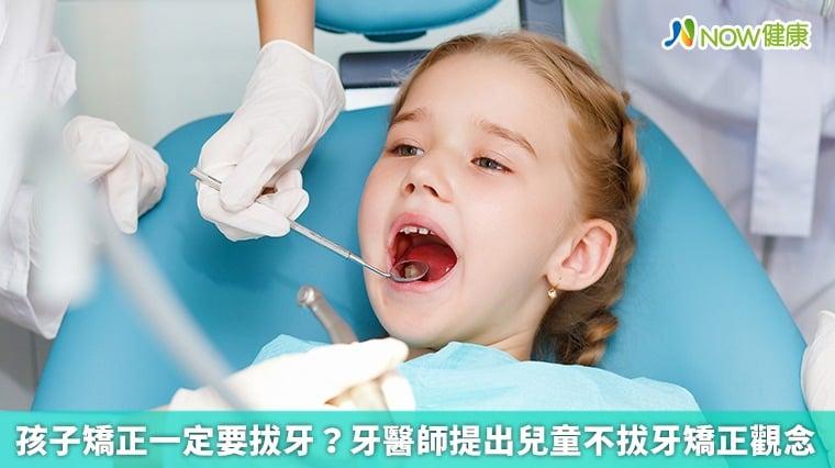 孩子矯正一定要拔牙? 牙醫師提出兒童不拔牙矯正觀念