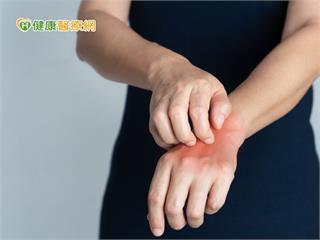 異膚患者告別火燒皮 生物製劑療效亮眼