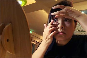 隱形眼鏡有金屬、保存液偏鹼 恐視力受損
