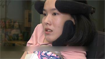 罹罕病「僅剩表情、手指能動」 李怡潔為救命藥向總統求救