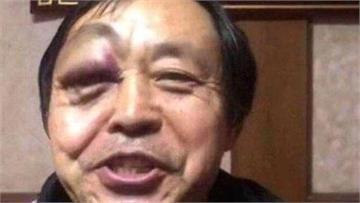 太極大師「30秒倒3次」慘遭業餘格鬥家KO昏迷