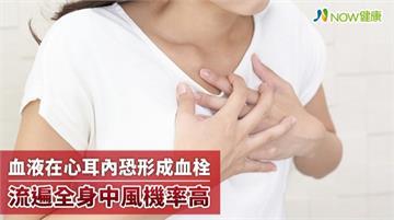 心耳位心房上方突起囊狀構造 血液滯留恐成血栓釀中風