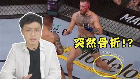 UFC「嘴砲拳王」吞敗!踢大腿後側竟斷腳倒地 他回溯解析慘輸原因