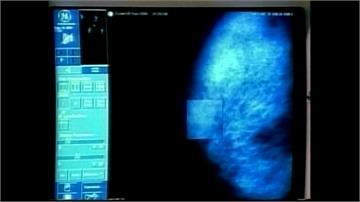 蘇黎世大學出「乳癌地圖」 以人工智慧破解癌症密碼