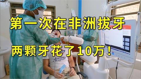 在非洲拔一次牙要花10萬?他公開「醫療設備太驚訝」猛誇:其實很值得