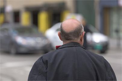 日本專家用老鼠實驗 高脂肪食物造成毛髮稀疏