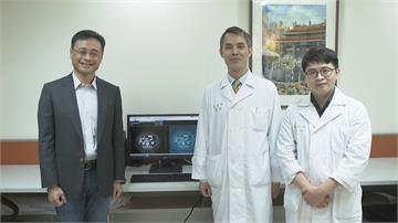 領先全球! 台大醫院AI檢測胰臟癌 1公分就能發現