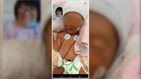 孕婦一度確診重症插管 睽違38天終於抱到女兒了!