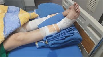 疑香灰被吹落引燃鞭炮 2人遭炸燙傷緊急送醫