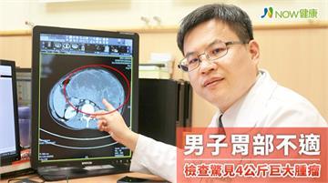 男子胃部不適驗出巨大腫瘤 重達4公斤腹部隆起如孕婦