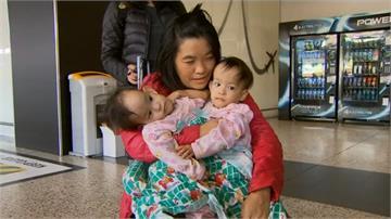 不丹連體女嬰抵澳洲 準備進行分割