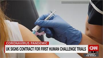 英國「人類挑戰」 讓人刻意染疫加速疫苗研發
