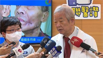 口腔癌侵犯顏面 動脈注射療法「只殺腫瘤」見好轉