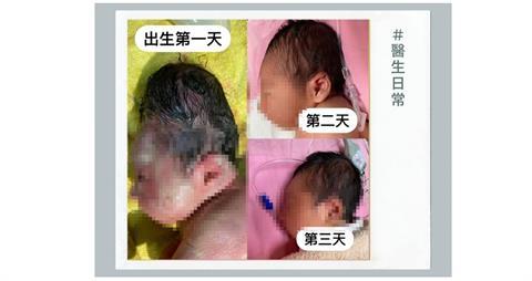 新生寶寶頭部「好長」嚇壞祖母 醫生淡定曝原因:先拍照好了!