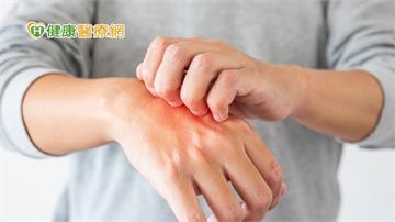 汗皰疹癢個不停 少食誘發的「禁忌食物」