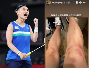 東奧/戴資穎摘銀吐心聲「或許不再有奧運機會」 深夜腿傷照惹哭粉絲