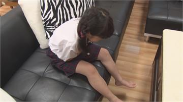 青少年無症狀者腳趾病變 美國醫界疑發現新武漢肺炎病徵