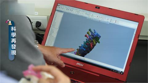 結合3D列印技術 為脊椎側彎病患注入新希望