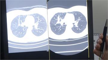 愛吃燒烤惹禍?35歲女發燒咳嗽竟是肺腺癌末期