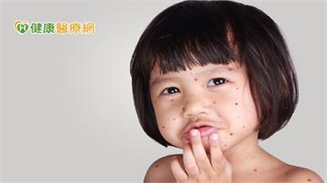 女嬰遭皮蛇爸傳染水痘 治療水痘施打疫苗最有效