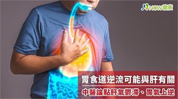 胃食道逆流可能與肝有關 中醫論點肝氣鬱滯、胃氣上逆