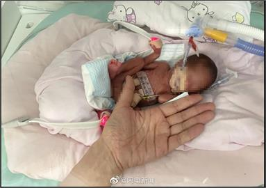 「掌上明珠」出生時體重僅450克 早產兒100天後刷新存活紀錄!