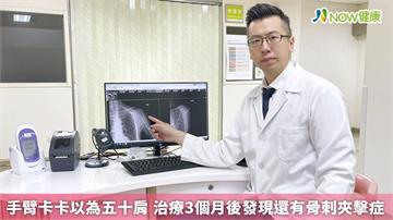手臂卡卡以為五十肩 治療3個月後發現還有骨刺夾擊症