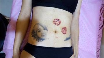 女子半夜拔罐睡著 傷口起水泡感染