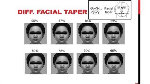 75%收斂度瓜子臉最受歡迎 醫師:自信就是美