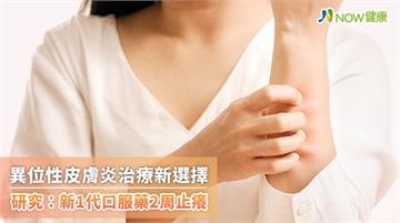 異位性皮膚炎治療新選擇 研究:新1代口服藥2周止癢