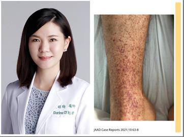 打完武肺疫苗「皮膚」7大症狀!醫示警:皮下廣泛小出血點快就醫