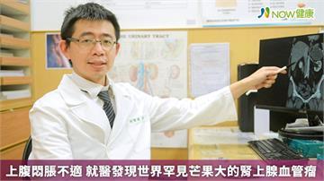 上腹悶脹不適 就醫發現世界罕見芒果大的腎上腺血管瘤