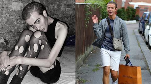 網紅5個月減肥「瘦成皮包骨」 竹竿腰、凹陷臉「前後對比」健康堪慮