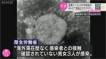 日本靜岡3人無出國史 感染英國變種病毒