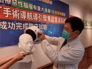 治療惡性腦瘤新突破! 長庚「聚焦超音波系統」完成臨床試驗
