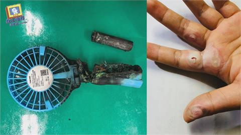 行動電風扇鋰電池突爆炸 學生手掌遭燒燙傷