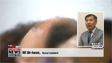 新型文明病?南韓千萬人受「脫髮」之苦