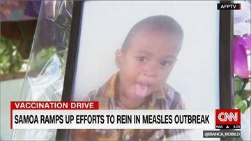 「反疫苗」謬論助長 薩摩亞麻疹疫情拉警報