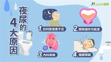 國人40歲以上成人夜尿盛行率近4成 醫曝常見4大原因