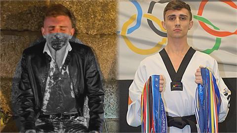 國手街頭遇襲!愛爾蘭跆拳道奧運選手剛回國 被打到「牙斷」毀容