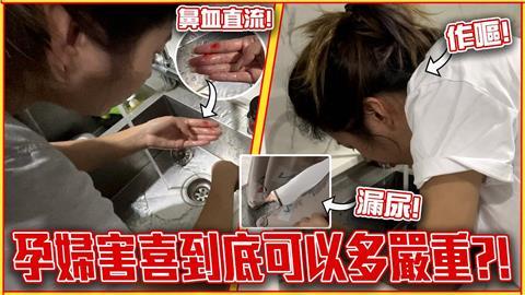 懷孕到底多辛苦?大馬網紅紀錄害喜過程 「吐到噴鼻血」嘆:沒飽餐一頓