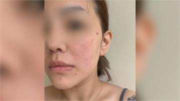 臉部除毛遭灼傷冒泡?女子與美容業者互控