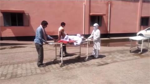 慘!武漢肺炎康復再染毛徽菌 印度患者挖眼治療