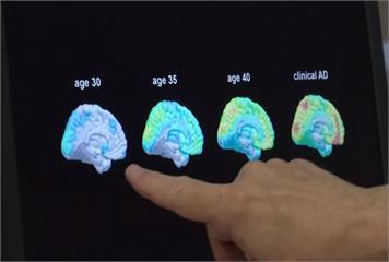 新發現!利用驗血早期發現阿茲海默症 準確率9成
