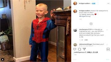 6歲男童護妹遭狗咬至毀容 美國隊長拍片讚:你真是個英雄