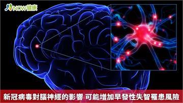 新冠病毒對腦神經的影響 可能增加早發性失智罹患風險