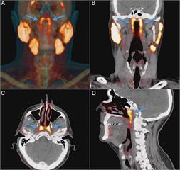 喉嚨裡發現新器官 有望改善癌症治療副作用