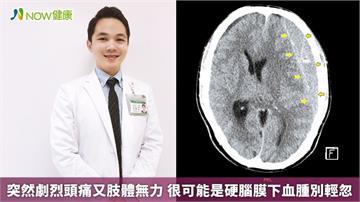 突然劇烈頭痛又肢體無力 很可能是硬腦膜下血腫別輕忽