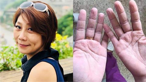 「外甥女」是醫護人員!郎祖筠2張照片曝辛酸 網心疼:有洋蔥
