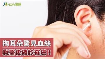 男子洗澡後掏耳朵驚見血絲 就醫確診是罕見外耳道癌